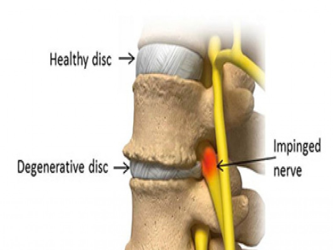 Causes and Symptoms of Degenerative Disc Disease | www ...
